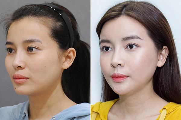 Cuộc đại tu toàn diện này khiến Cao Thái Hà mất 3 tháng trời để hồi phục. Tuy nhiên sau dao kéo, cô đã có phần cằm gọn gàng chuẩn V-line, đường nét trẻ trung, mềm mại hơn.