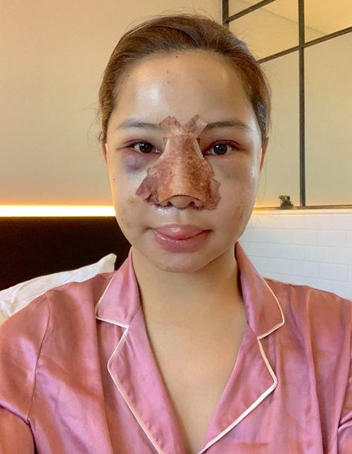 Hồi giữa tháng 9, Lưu Đê Ly công khai đã phẫu thuật thẩm mỹ. Cô tiết lộ sang Hàn từ hồi tháng 7, thực hiện cácnâng mũi, hạ gò má, trượt cằm, căng chỉ, cấy mỡ tự thân.