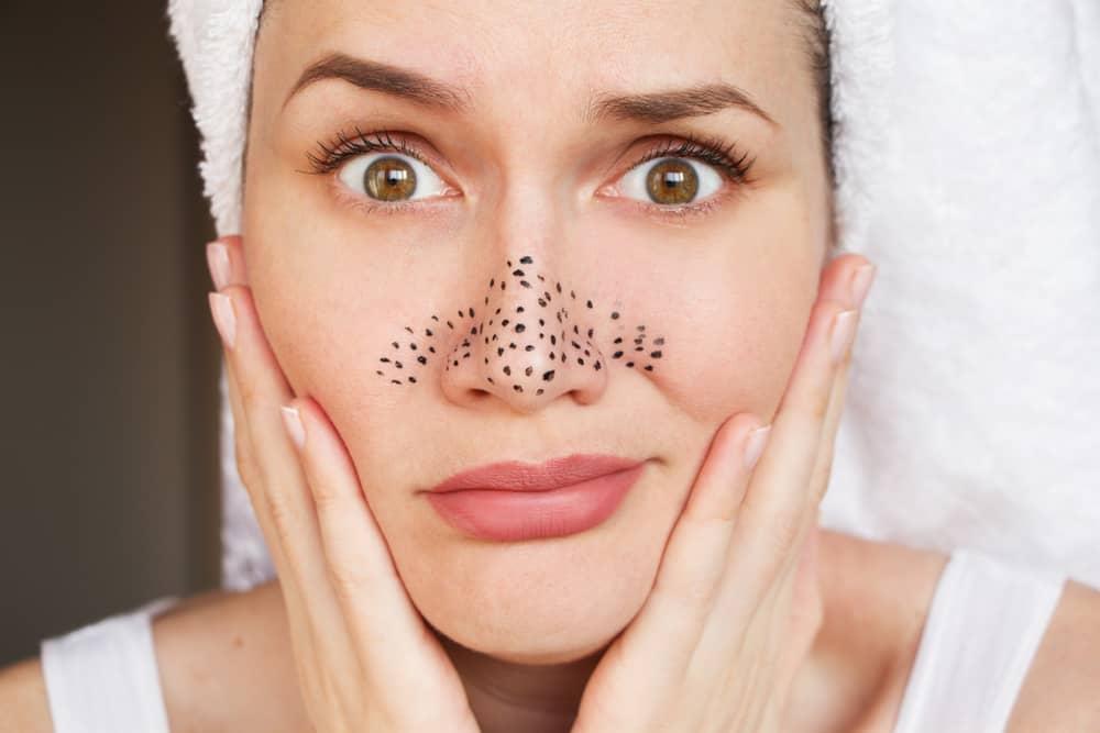 Loại bỏ mụn đầu đen khi áp dụng cách mát xa da mặt đúng cách